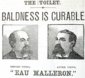 toilet bald